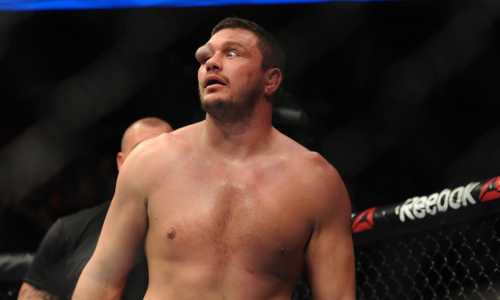 matt-mitrione-swollen-eye
