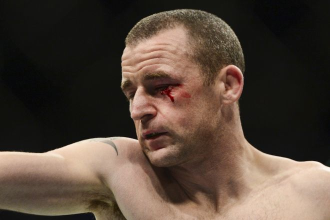 Jul 11, 2015; Las Vegas, NV, USA; Neil Seery bleeds from the eye against Louis Smolka (not pictured) during UFC 189 at MGM Grand Garden Arena. Smolka won via unanimous decision. Mandatory Credit: Joe Camporeale-USA TODAY Sports